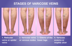 vein-issues-fort-myers-eveinscreening-300x191